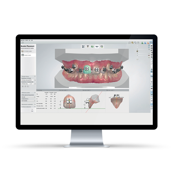 TRIOS Orthodontics | Patterson Dental