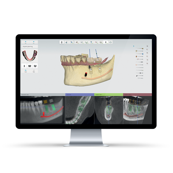 3Shape Implant Studio | Patterson Dental